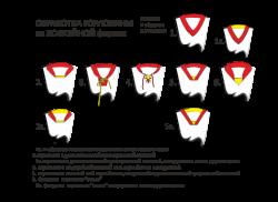 Обработка горловины на хоккейной форме